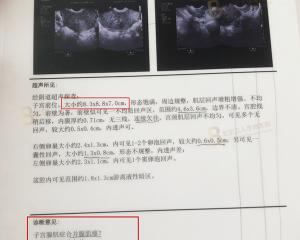 千里赴京寻医,战胜腺肌症梦魇开启新人生